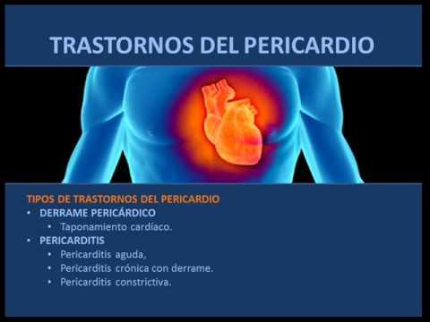 pericarditis constrictiva