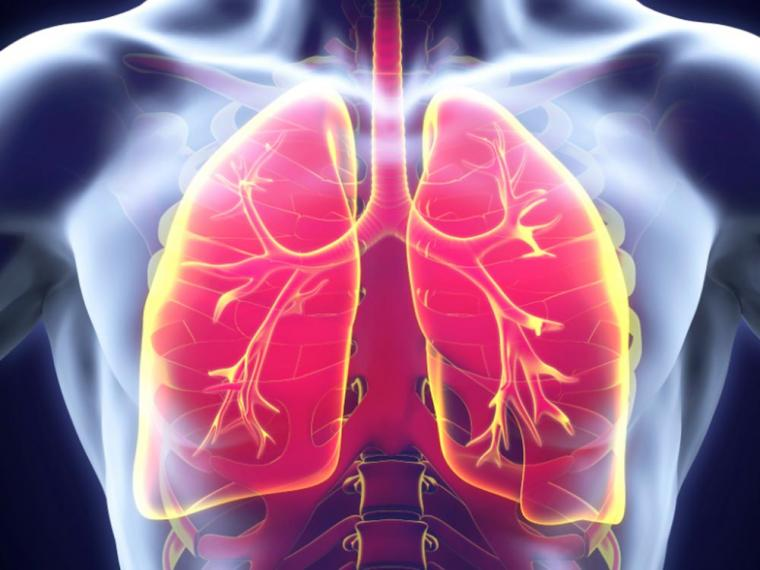 aplasia pulmonar