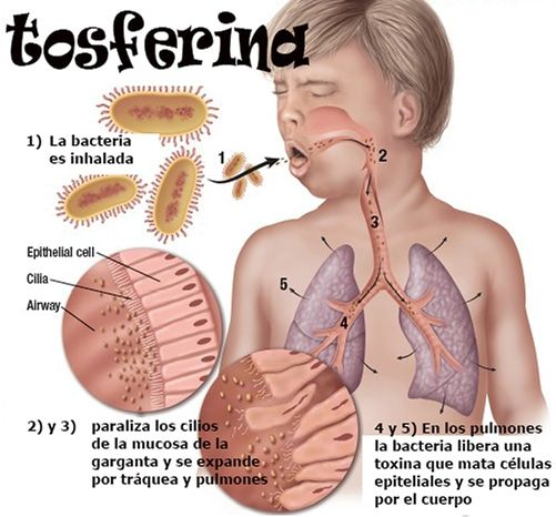 tos ferina diferencial