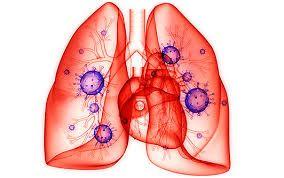 tratamiento de la neumonía