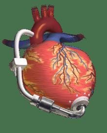 dispositivo de asistencia ventricular