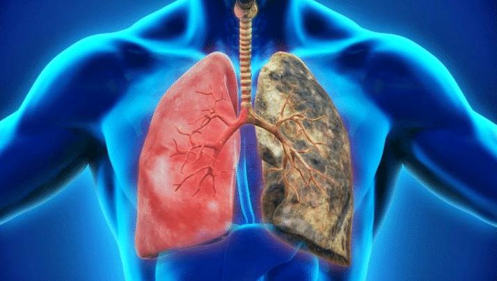 betabloqueantes pulmon