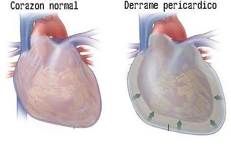 derrame pericárdico en el corazón principal