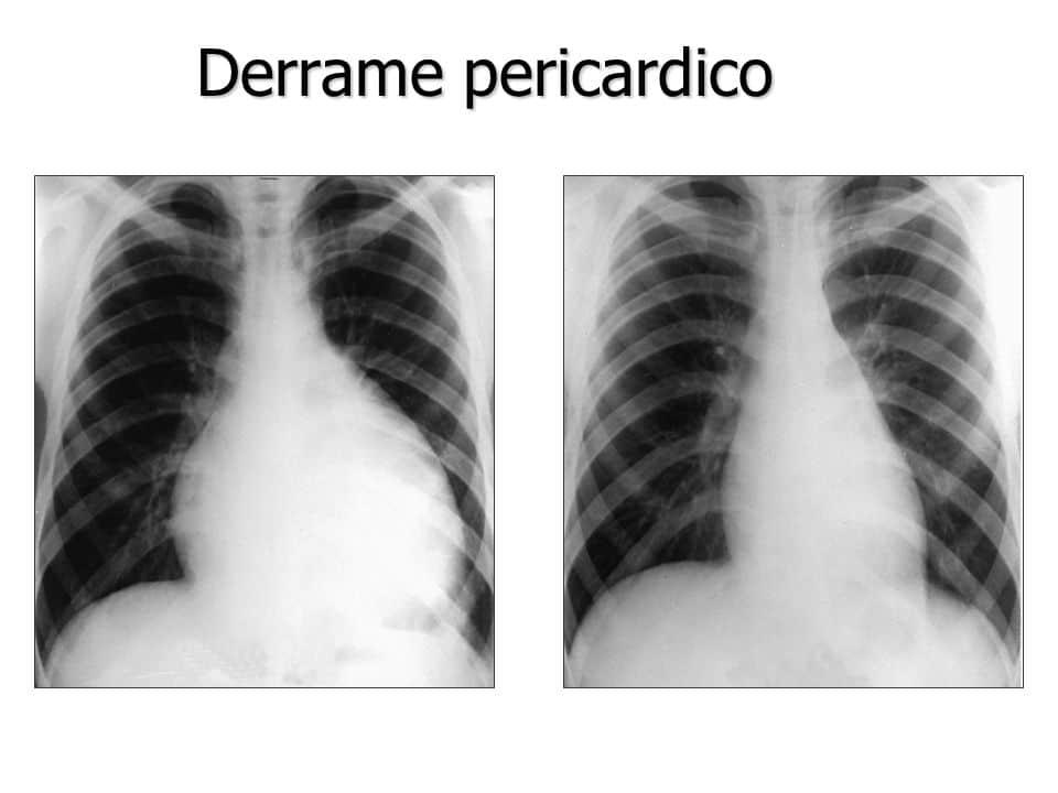 derrame pericárdico en el corazón causa
