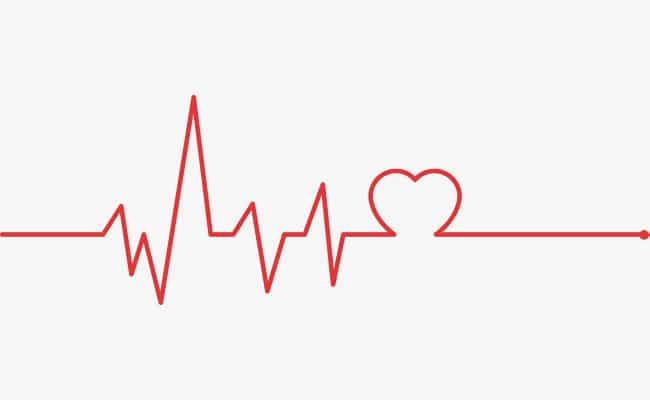 derrame pericárdico en el corazón electrocardio