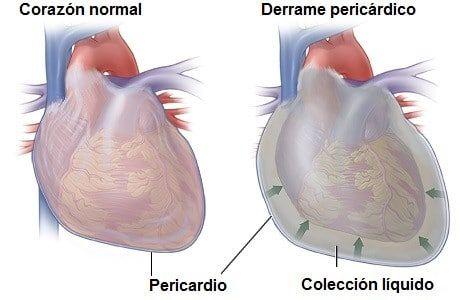 derrame pericárdico en el corazón tipos