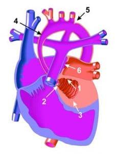 Corazón izquierdo hipoplásico