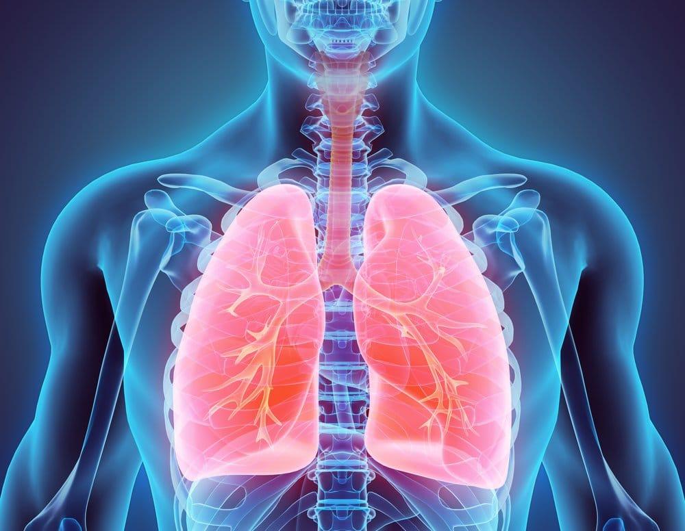 neumonia lipoidea pulmones
