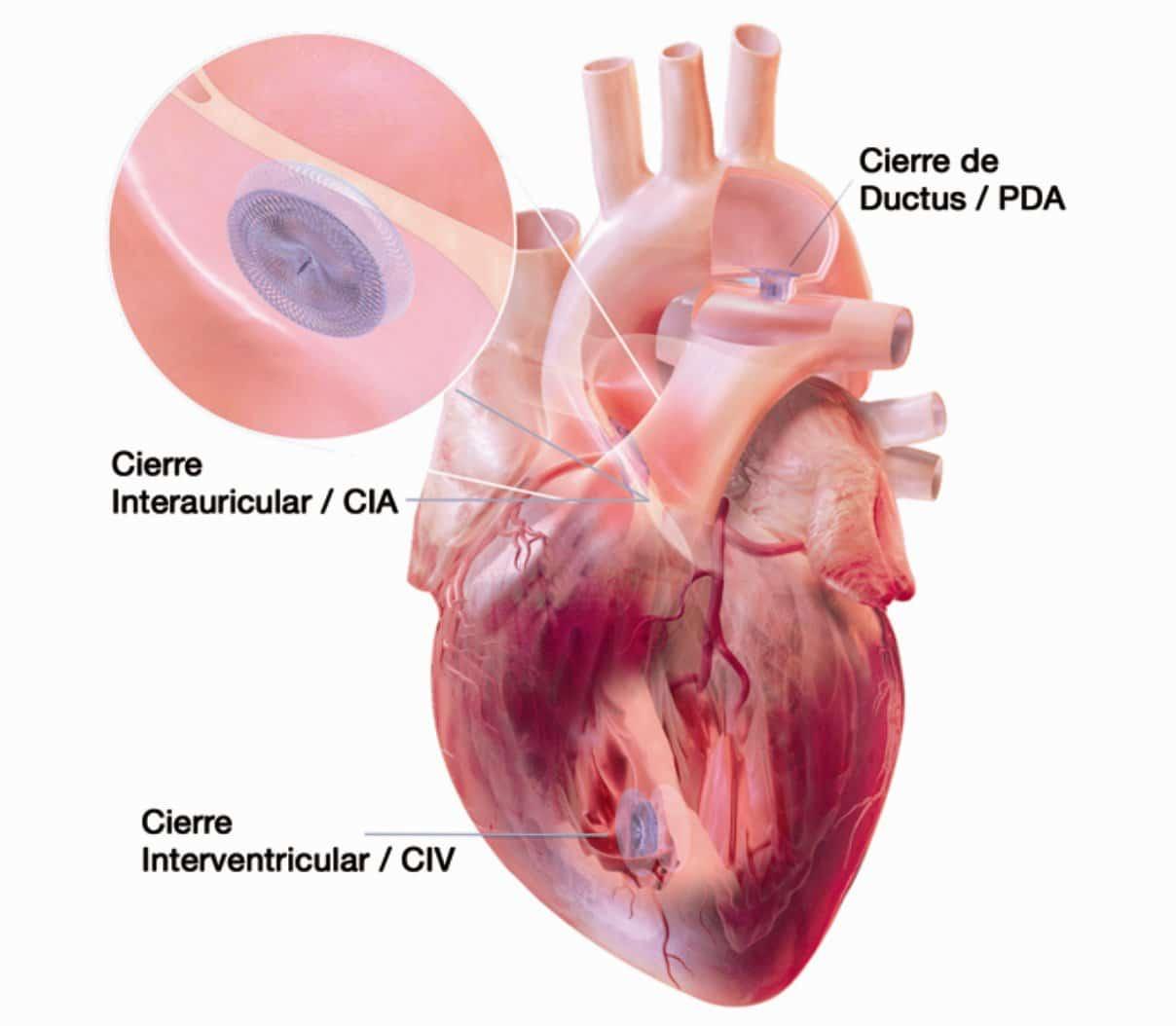 soplos cardiacos ubicacion