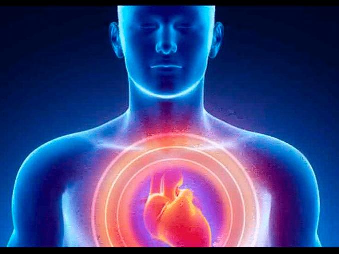 taquicardia sinusal 1