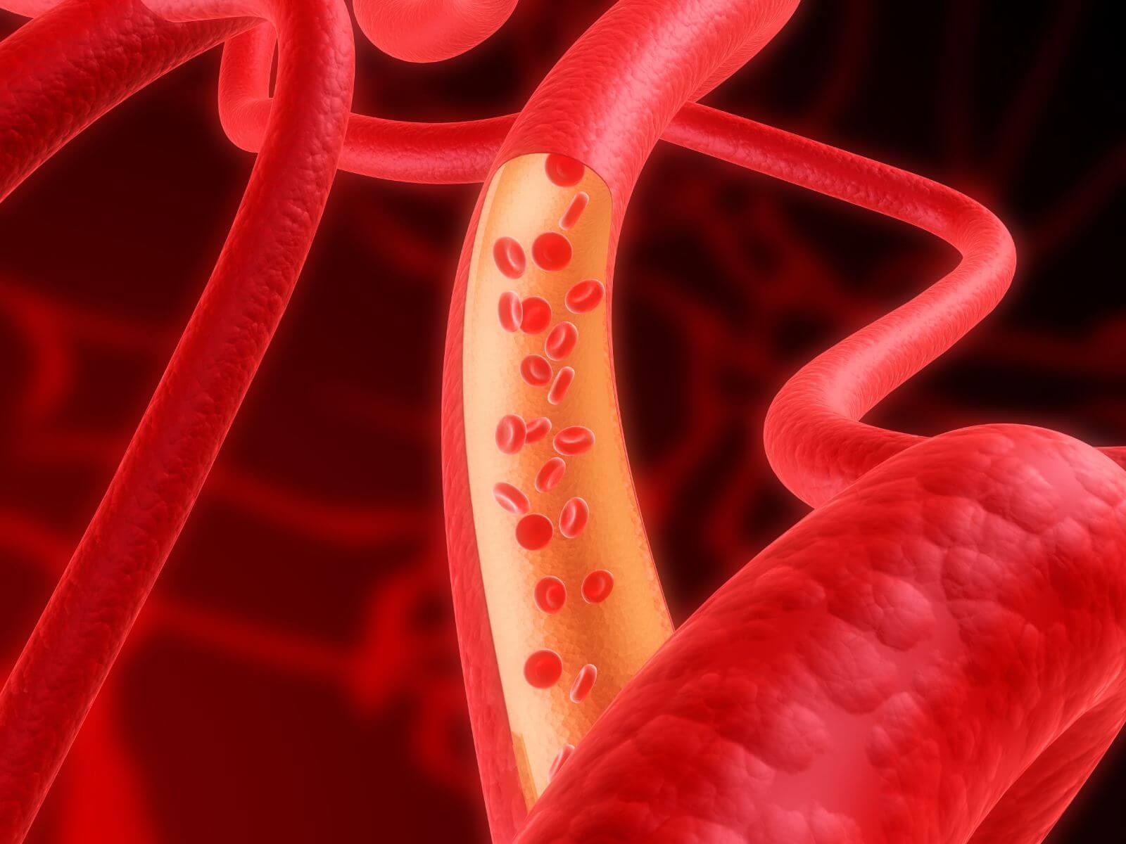 anisocitosis
