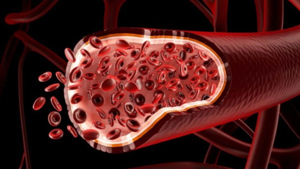hemocultivo 1