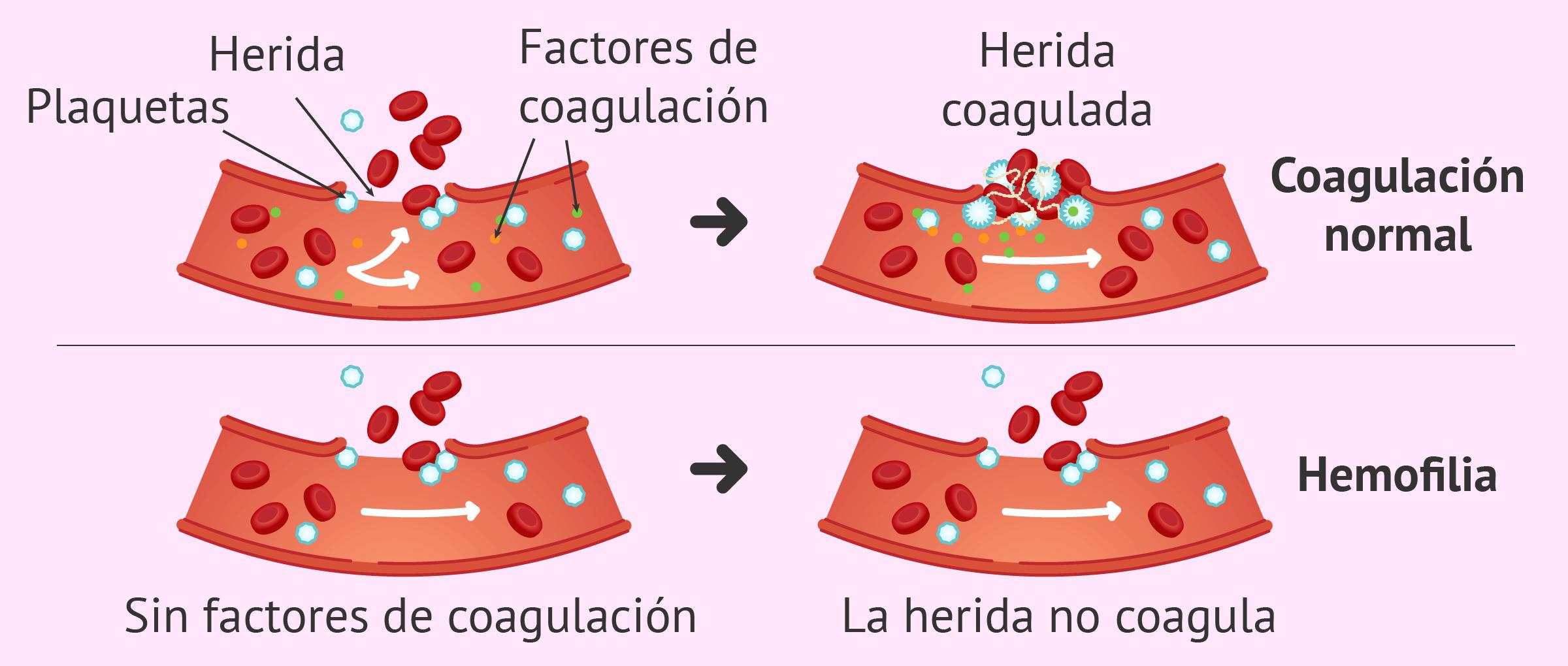 que es la hemostasia uterina