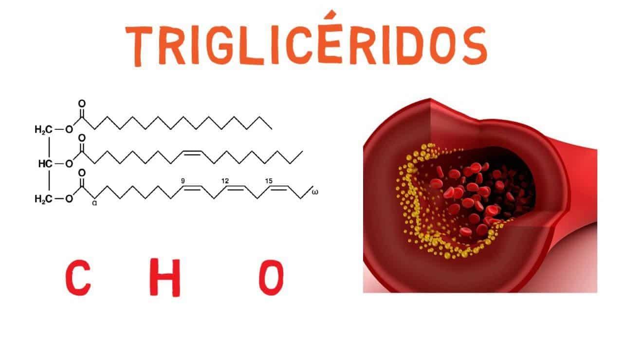 trigliceridos altos